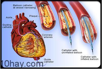 Can thiệp mạch vành qua da