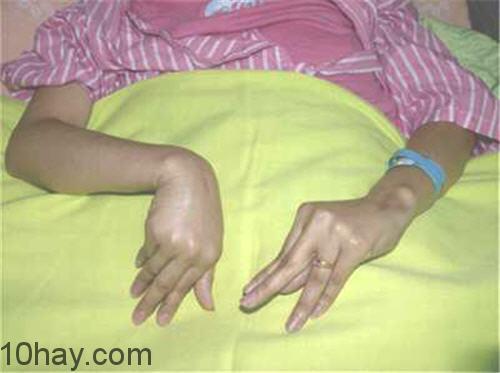 Bàn tay đỡ đẻ