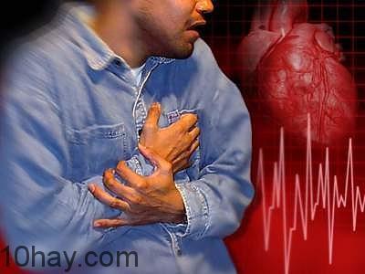 mắc bệnh tim mạch