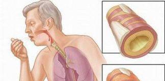 dấu hiệu nhận biết bệnh lao phổi
