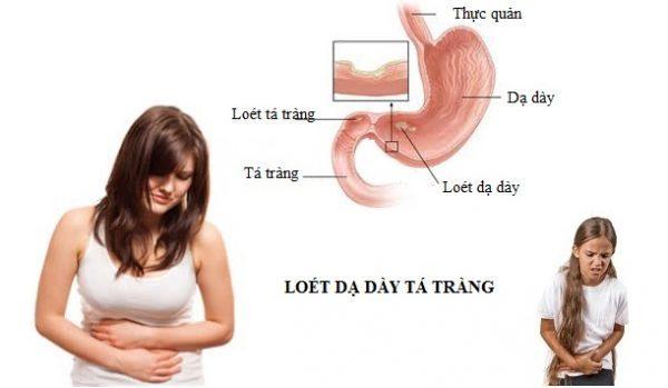 biện pháp phòng bệnh loét dạ dày tá tràng