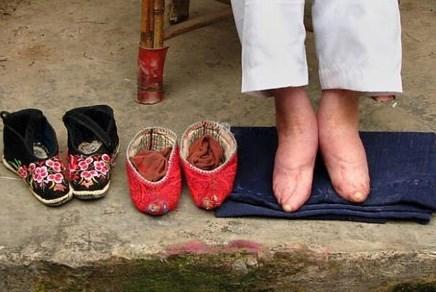Đôi chân biến dạng vì hủ tục bó chân