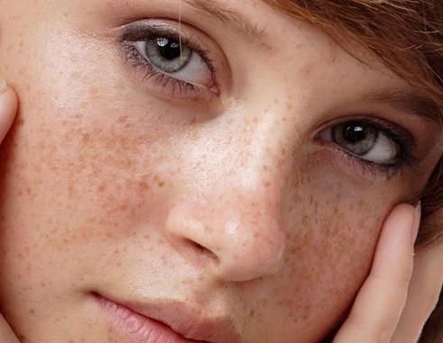 bệnh ngoài da thường gặp vào mùa hè