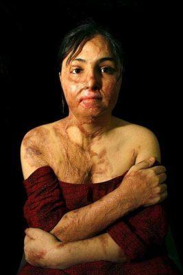 Thân thể chằng chịt vết bỏng của một phụ nữ từng bị thiêu sống