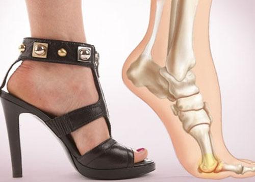 Mang giày cao gót quá nhiều khiến máu huyết bàn chân lưu thông không đều