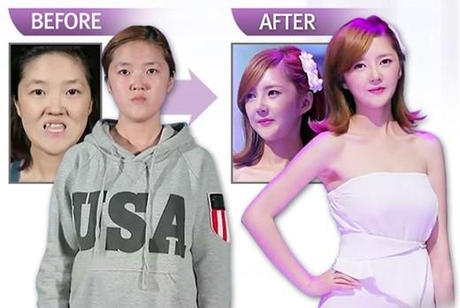 Choi Sun Mi - Tự tin hơn nhờ phẫu thuật thẩm mỹ