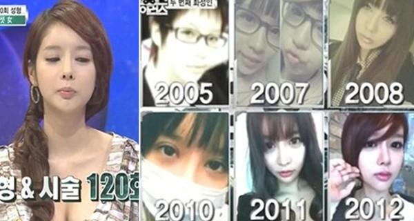 Cô gái Hàn Quốc phẫu thuật 120 lần trong 7 năm