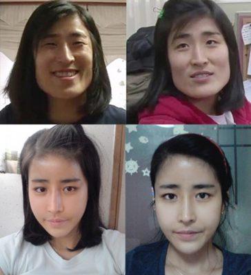 Cô gái Hàn Quốc sau phẫu thuật được chính bác sĩ cầu hôn