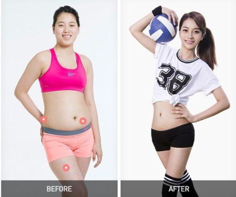Cuộc sống hoàn toàn thay đổi của cô gái Hàn Quốc sau phẫu thuật