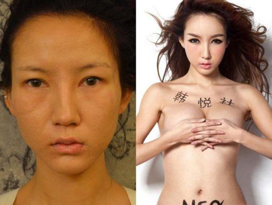 Người mẫu Trung Quốc tràn đầy tự tin sau phẫu thuật thẩm mỹ